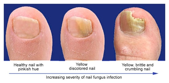 Nail Fungus Are Likely Amongst The Most Frequent Of Diseases And Possibly Because This Commonness Folks Came To Begin Seeing Them Where
